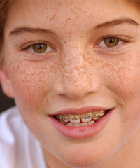 Straight Smiles | Surgical Orthodontics